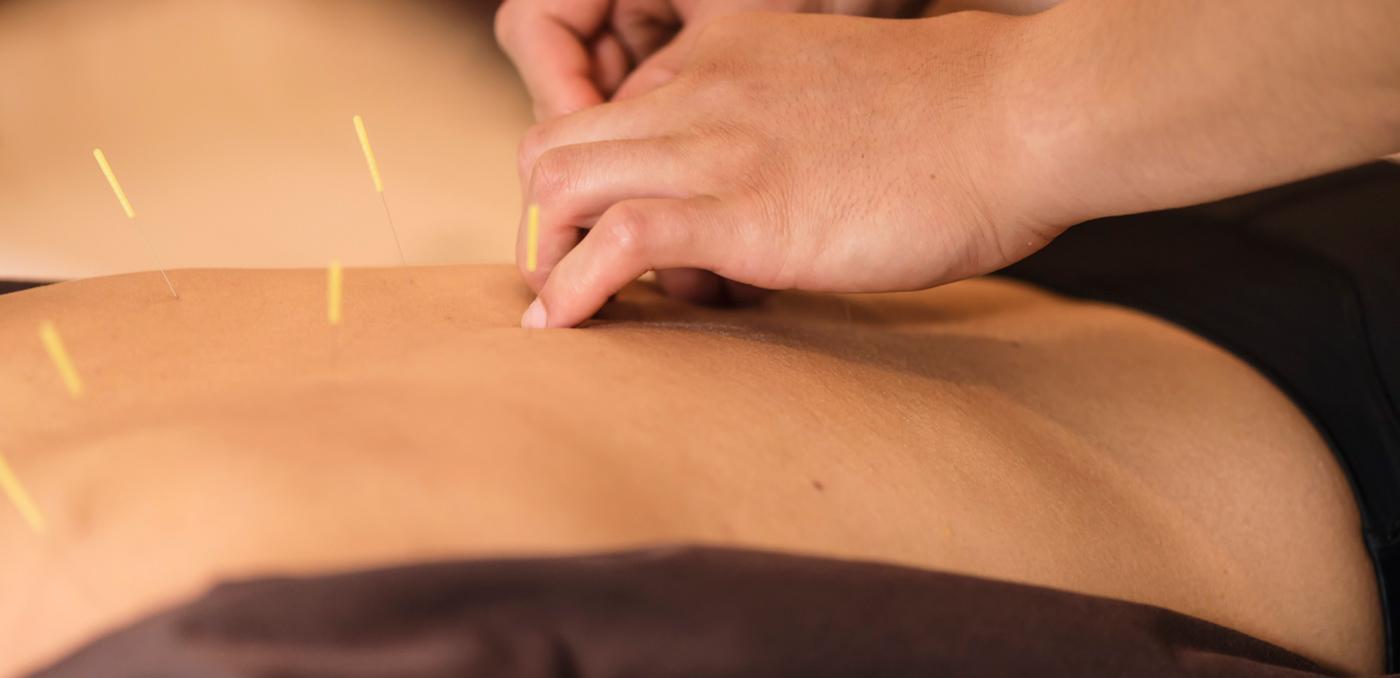 jvhb akupunktur